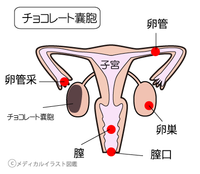 卵巣チョコレート嚢胞、妊娠妊活でお悩みなら千葉県千葉市整体