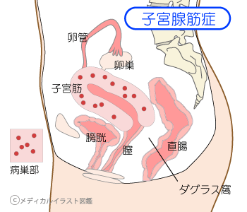子宮腺筋症の病巣部