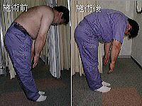 尾骨・坐骨・股関節・大腿骨・腸骨・腰椎・O脚-骨盤矯正